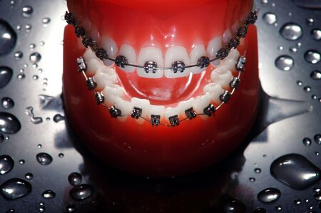 Open dentures with braces , water drops background,dramatic lighting photo