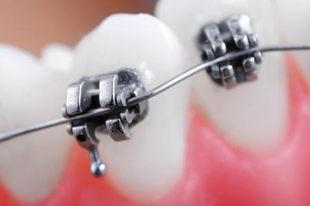 dentadura postiza: Llaves dentales super macro, dientes torcidos, profundidad de campo