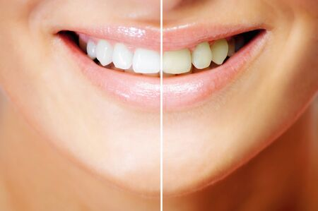 Teeth whitening , before and after comparison photo