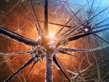 neurons: Viral encephalitis , 3d illustration