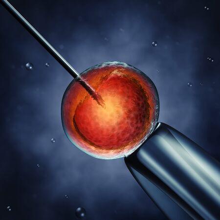 Injection intracytoplasmique de spermatozoïdes, le sperme injecté dans un ovocyte, illustration détaillée