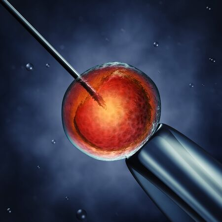 fertilisation: Intracytoplasmic sperm injection , sperm injected into an oocyte , detailed illustration