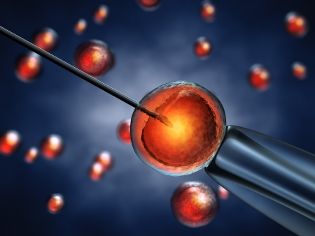 fertility: Intracytoplasmic sperm injection , sperm injected into an oocyte , detailed illustration