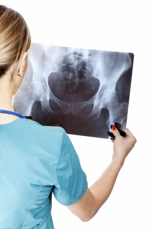 chest xray: Female doctor examining an x-ray image. Focus is on the x-ray image. Isolated on white background.