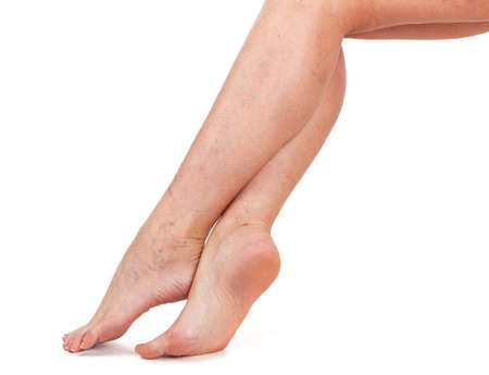 Legs of a woman. Skin with vascular stars. White background