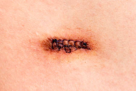 Row of stitches holding together the edges of a wound Stock Photo