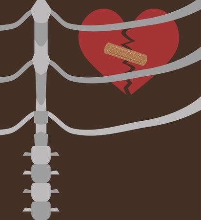 Illustration von einem gebrochenen Herzen in der Brust Standard-Bild - 25313170