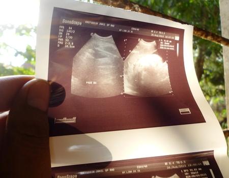 sonogram: Foto de una ecograf�a ecograf�a de un feto
