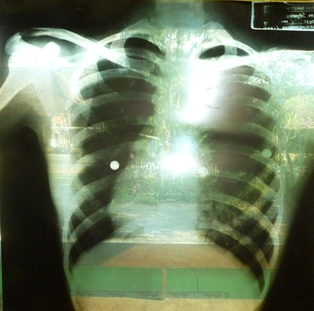 radiological: x-ray chest
