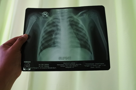 An x-ray of a healthy female chest and lungs