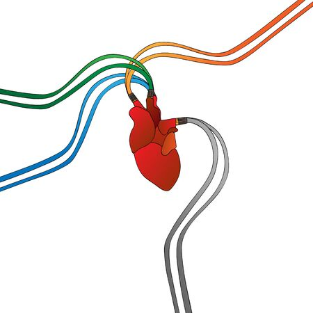 pacemaker: Artificial heart background