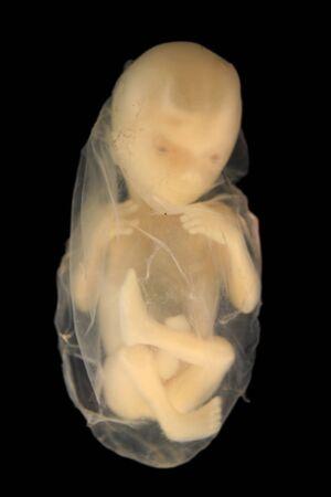 Foetus op zwart