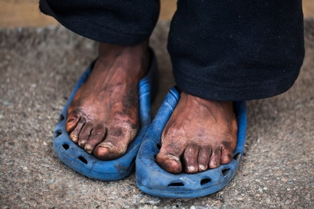 The feet of a old man who are in pain Stock Photo - 15328450