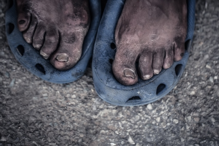 needy: The feet of a old man living on the street