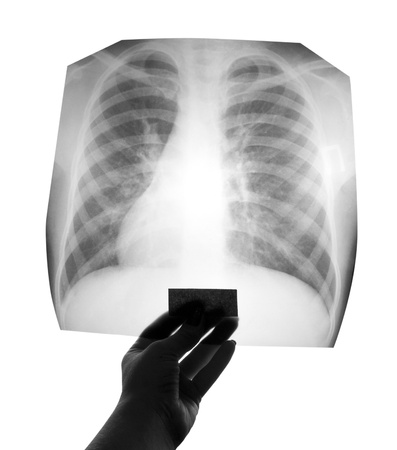 Chest X-ray image in hand photo