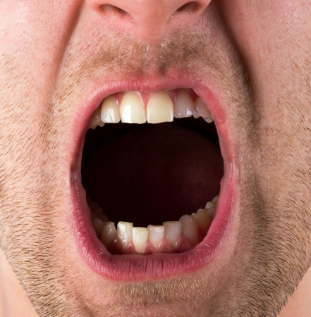 tooth pain: Male screaming open mouth with teeth Stock Photo