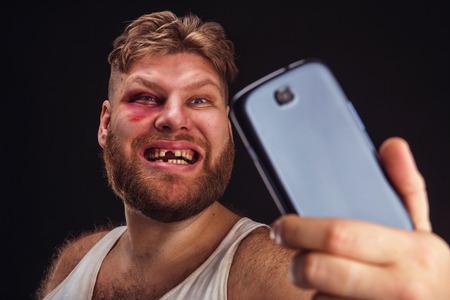 Man met blauwe plekken en zonder tanden neemt selfie over zwart Stockfoto