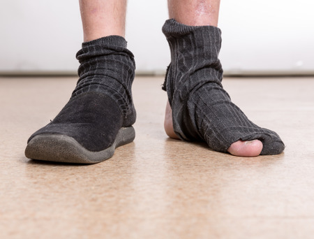 slippers: One male foot in slippers, other in sock with hole Stock Photo