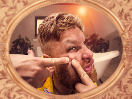 Adult man squeezes the pimple on his face looking in the mirror photo