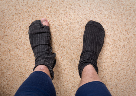 Male feet in old leaky socks Stock Photo