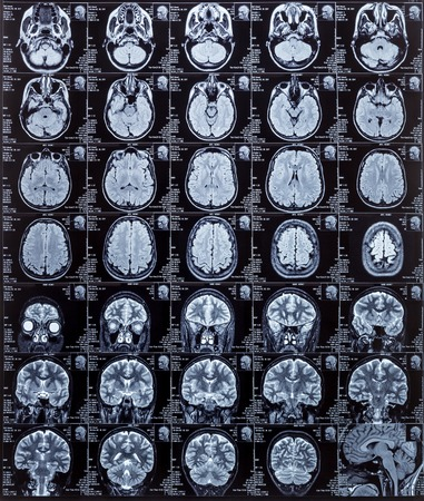 medical scanner: Magnetic resonance imaging photography of human brain