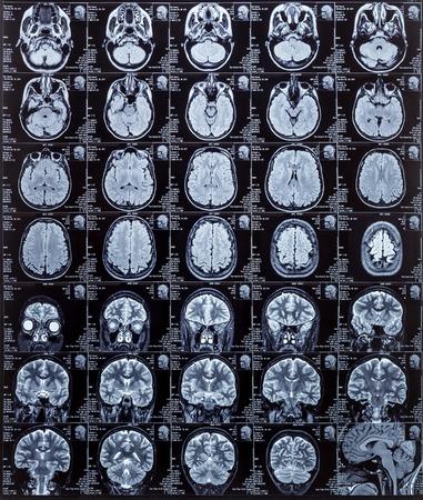 imaging: Magnetic resonance imaging photography of human brain