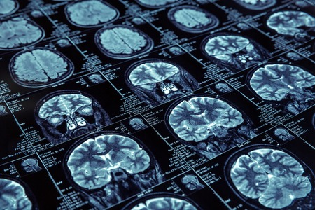 Primer plano de rayos X fotografía de cerebro humano