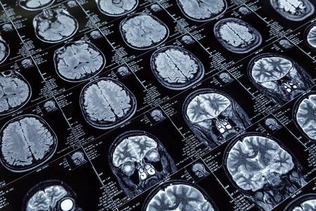 Obraz rentgenowski ludzkiego mózgu