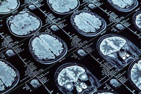 Closeup of magnetic resonance imaging photography of human brain