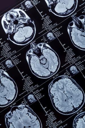 Magnética fotografía resonancia del primer del cerebro humano
