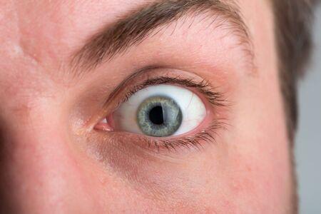 Nahaufnahme überrascht männlichen Auge