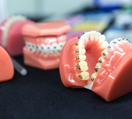 Dental or orthodontic tools, denture closeup Stock Photo