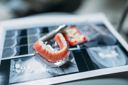 Dentures and pins on the table, dental prostheses Imagens