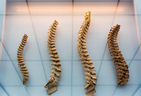 Modell einer menschlichen Wirbelsäule, Wirbelsäulen