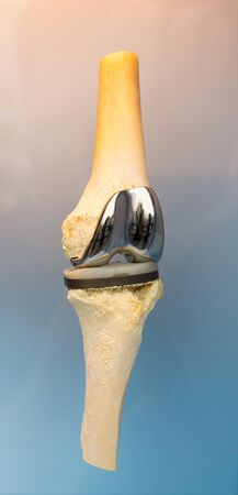Human joint prosthesis , metal implant