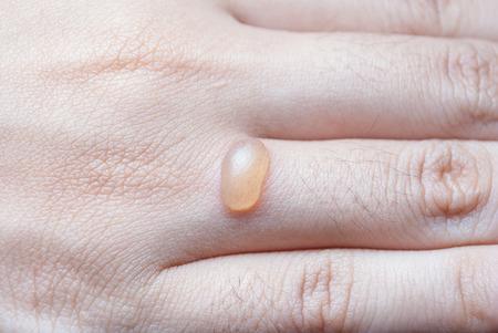 Blister on Human Finger.