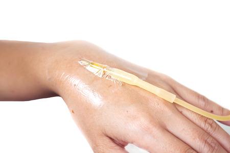 iv: single hand drip receiving a saline solution