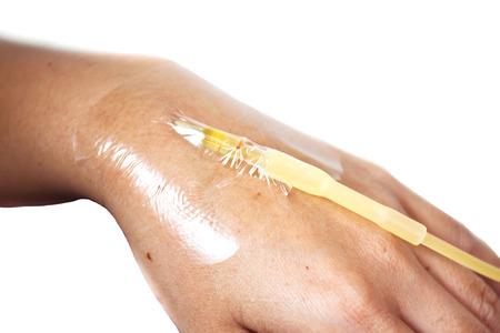 single hand drip receiving a saline solution