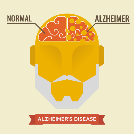 amnesia: Illustration of human brain with alzheimer disease concept