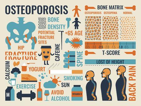 huesos: Ilustración del icono infografía osteoporosis