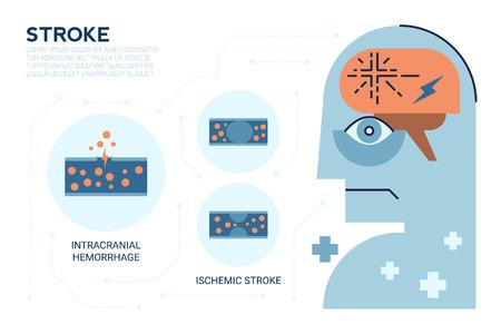 Illustraiton of Stroke brain disease, Cerebrovascular Disease (CVD), Cerebrovascular Accident (CVA), Brain attack