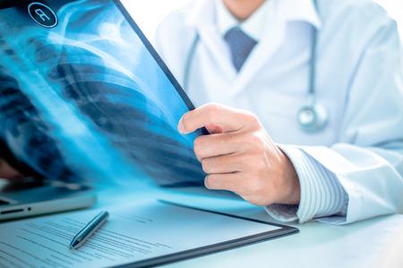 x 線またはレントゲン画像を保持している男性の医者のクローズ アップ
