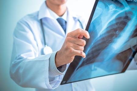 Nahaufnahme von männlichen Arzt hält x-ray oder Röntgen Bild