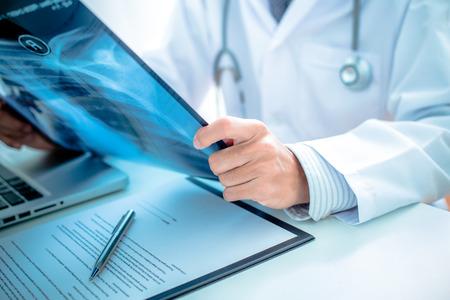 close-up van mannelijke arts die x-ray of afbeelding röntgen Stockfoto