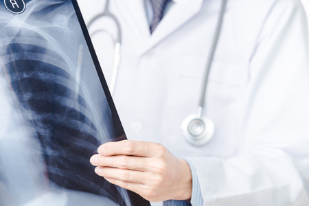roentgen: close up of male doctor holding x-ray or roentgen image