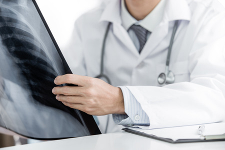 oncologist: close up of male doctor holding x-ray or roentgen image