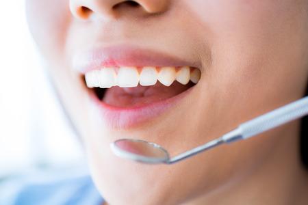 그녀의 이빨을 examinated 데 젊은 여성의 확대해서 스톡 콘텐츠