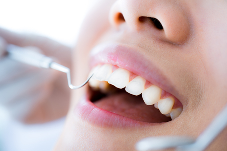 Close-up of young female having her teeth examinated Stock Photo
