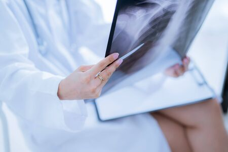 Asia Woman Doctor Looking at X-Ray Radiography in patients Room Banco de Imagens