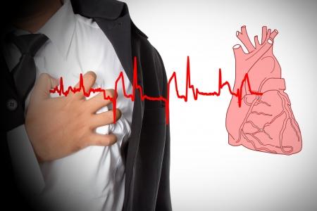 attacco cardiaco: Heart Attack e il cuore batte cardiogram Archivio Fotografico